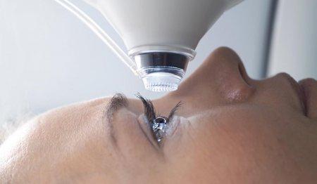 Лазерная коррекция зрения: особенности процедуры